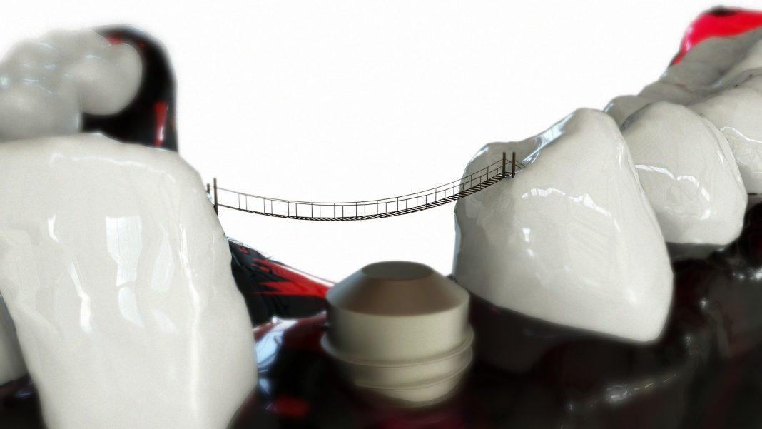 aplicarea implanturilor dentare