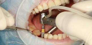 implant dentar pret